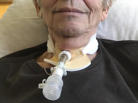 Sobald-die-Trachealkanuele-mit-einem-Sparachmodul-verbunden-wurde-konnte-der-Patient-kurze-Zeit-sprechen